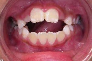 咬舌癖 に対する画像結果