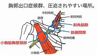 胸郭出口症候群 に対する画像結果