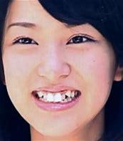 武井咲 歯並び に対する画像結果