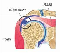 腱板断裂 に対する画像結果