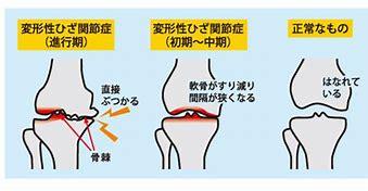 正常な膝関節と変形性膝関節症 に対する画像結果