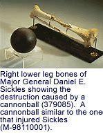 Image result for gen. sickles leg