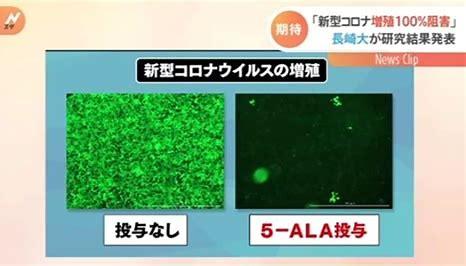 長崎大学 コロナウィルス研究 に対する画像結果