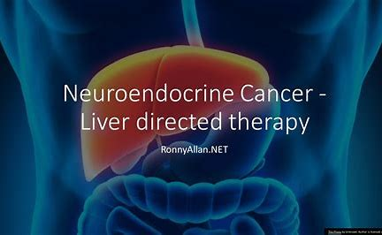Image result for liver directed therapy