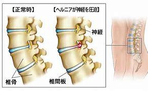 腰椎椎間板ヘルニア フリー に対する画像結果