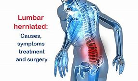 Image result for Lumbar discs