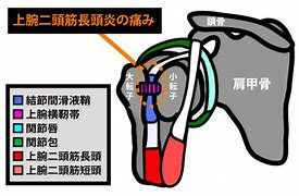 上腕二頭筋長頭腱 症状 に対する画像結果