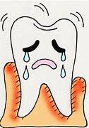 歯茎が下がる イラスト に対する画像結果
