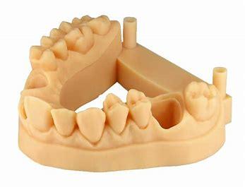 Résultat d'images pour Impiression 3D dans le dentaire