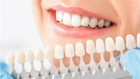 5 Ways to Whiten Teeth with Materials at Home