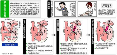 ファロー 四 徴 症 喫煙