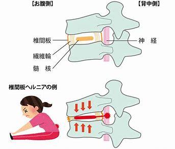 坐骨神経痛イラスト に対する画像結果