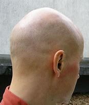 Bildergebnis für Glatze
