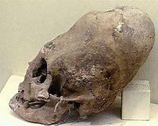 古代人 頭蓋骨 に対する画像結果