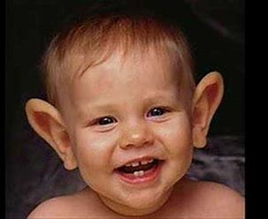 Image result for Baby with Big Ears