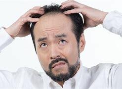 薄毛 に対する画像結果