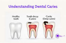 Image result for caries