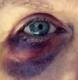 Image result for black-eye