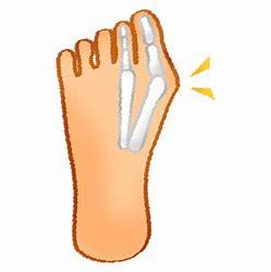 手術不要の外反母趾治療