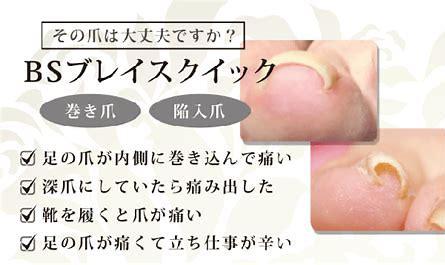 bsブレイス クイック 巻き爪 に対する画像結果