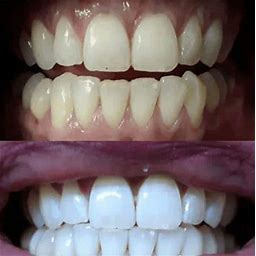 SNOW Teeth Whitening System - All-In-One Whitening Kit For Your Teeth